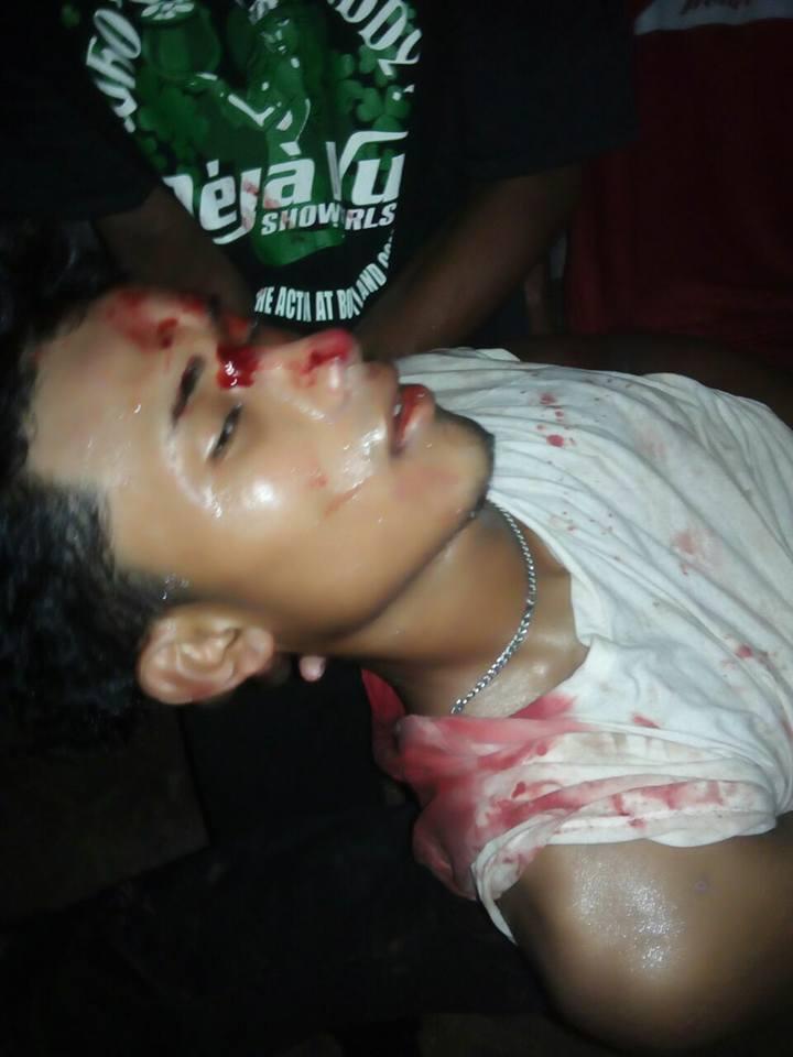 Este joven era miembro de Yatama. Murió en un enfrentamiento entre militantes del partido indígena y militantes del FSLN. Este fue el tercer muerto por la violencia post Electoral en el Caribe.