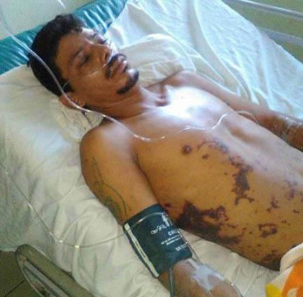 Joven de Matiguás pierde sus piernas por torturas de la Policía Nacional . Foto: Cortesía Cenidh