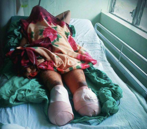 A Juan Rafael Lanzas, se le engangrenaron las piernas en un baño de una celda policial. Foto/Cortesía