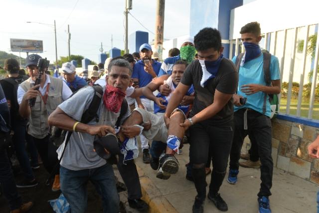 Uno de los heridos en la marcha de las madres de abril. Foto: La Prensa/Jader Flores