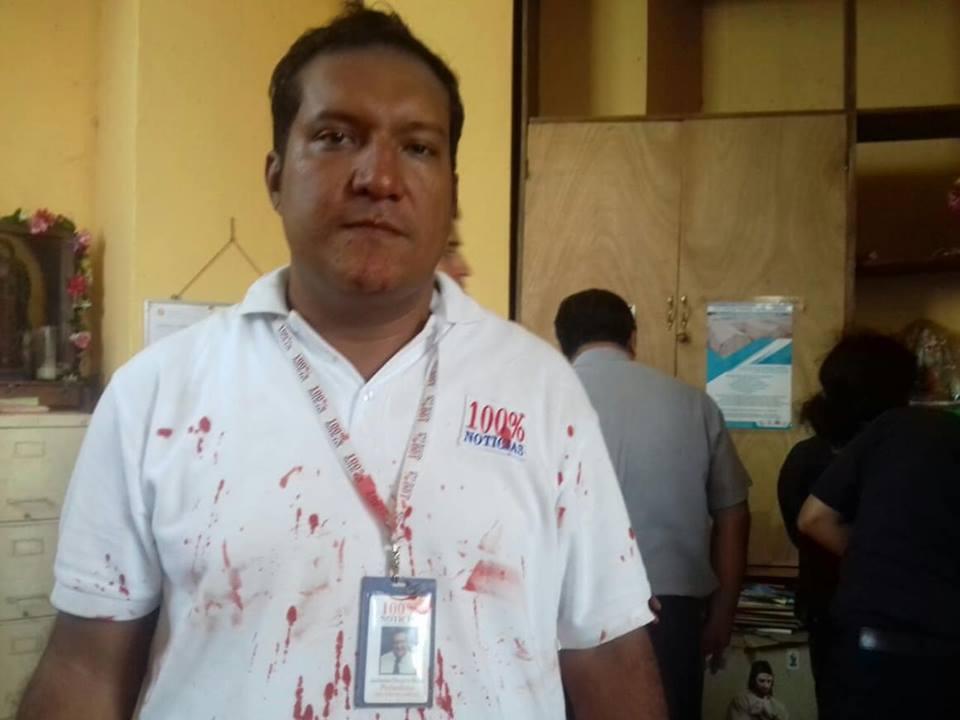 Jackson Orozco, periodista de 100% Noticias. Foto: Cortesía
