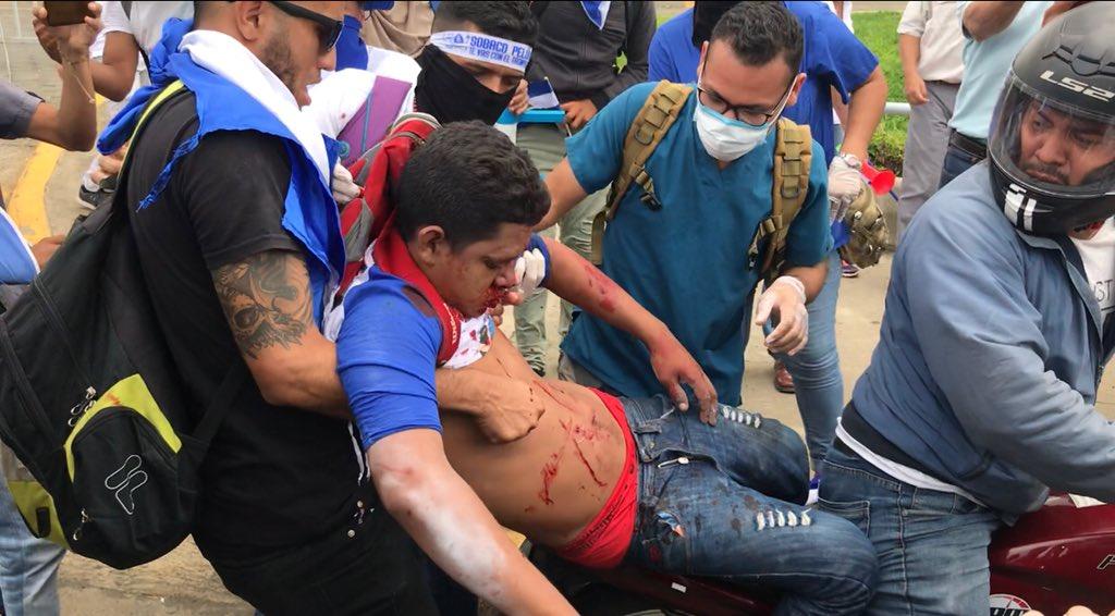 Once personas, entre ellos niños, resultaron heridas por armas de fuego tras el ataque de los paramilitares orteguistas. Foto: tomada de Confidencial