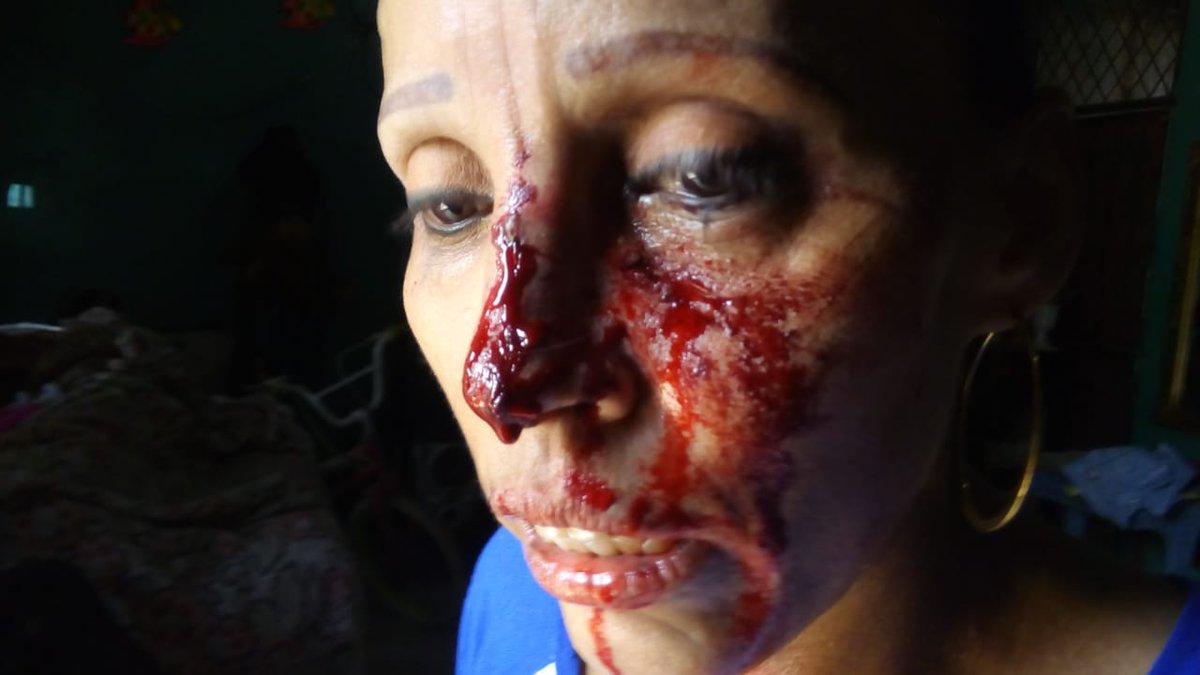 La dictadura sigue mostrando su cara más sanguinaria. Foto/Boletín Ecológico