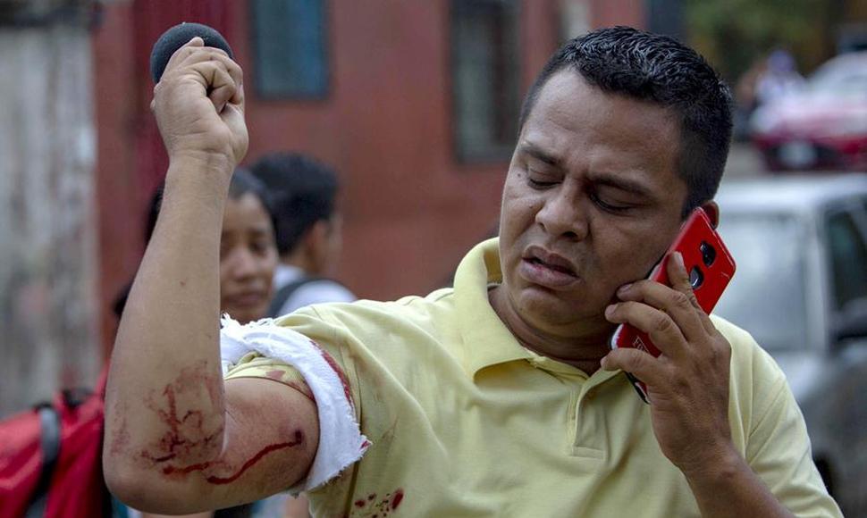 Reporteros Sin Fronteras presenta informe sobre violaciones a la libertad de prensa en Nicaragua. En la foto, el periodista Winston Potosme, quien resultó con un balazo en el brazo.