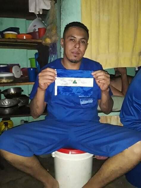 Bryan Cruz Calderón, reo político mutilado por la dictadura. Foto: Cortesía