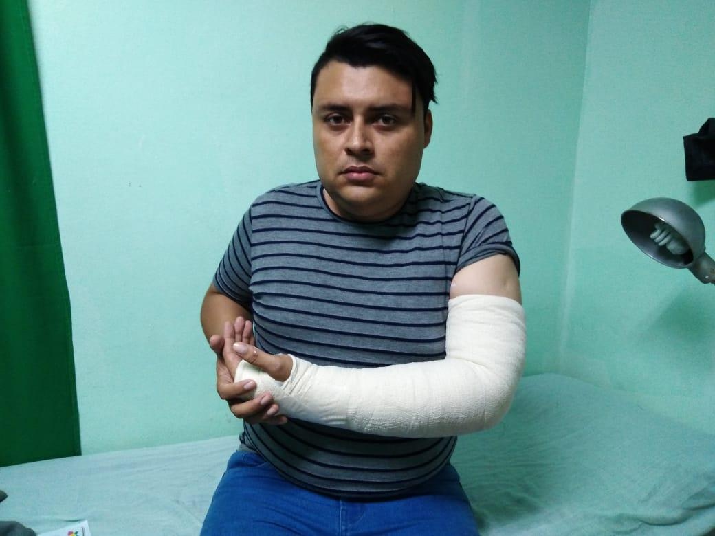 Armando Amaya, periodista de Canal 12, muestra la fractura en su brazo izquierdo producto de la agresión de los agentes policiales del régimen. Foto: Cortesía