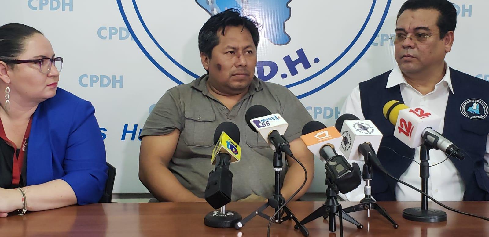 Gabriel Putoy estuvo secuestrado nueve meses por la Policía orteguista, acusado de crimen organizado y terrorismo, salió el 10 de junio de 2019, bajo la polémica Ley de amnistía. Foto: Geovanny Shiffman/Artículo66