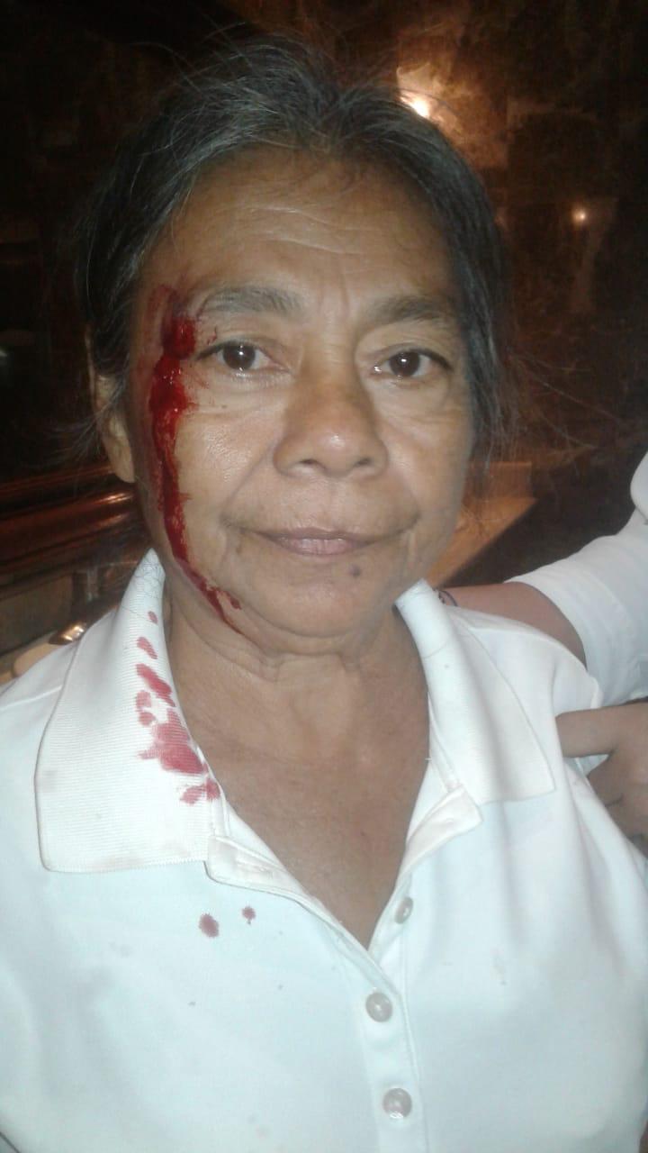 Juana Francisca Reyes recibió un golpe en la cabeza por parte de un paramilitar. Foto: Cortesía