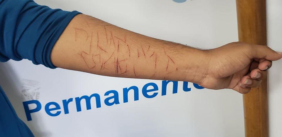 Paramilitares orteguistas golpearon a un adolescente y le marcaron en el brazo la palabra «plomo» y «el comandante se queda». Foto: Geovanny Shiffman/Artículo 66