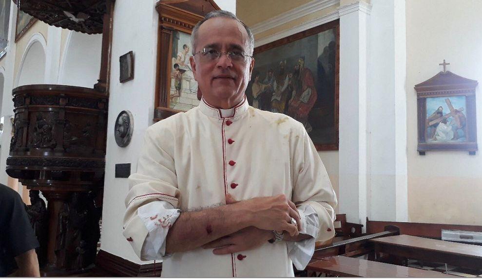 Monseñor Báez resultó herido por paramilitares encapuchados en Jinotepe. Foto: La Prensa
