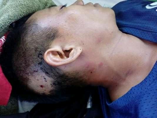 Comunitario herido de un impacto de bala es trasladado a un hospital de Managua