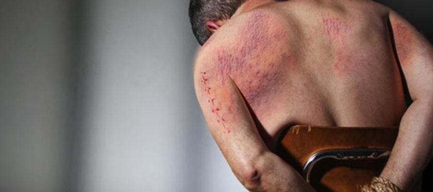 Los cubanos en Venezuela encrudecen métodos de torturas contra opositores