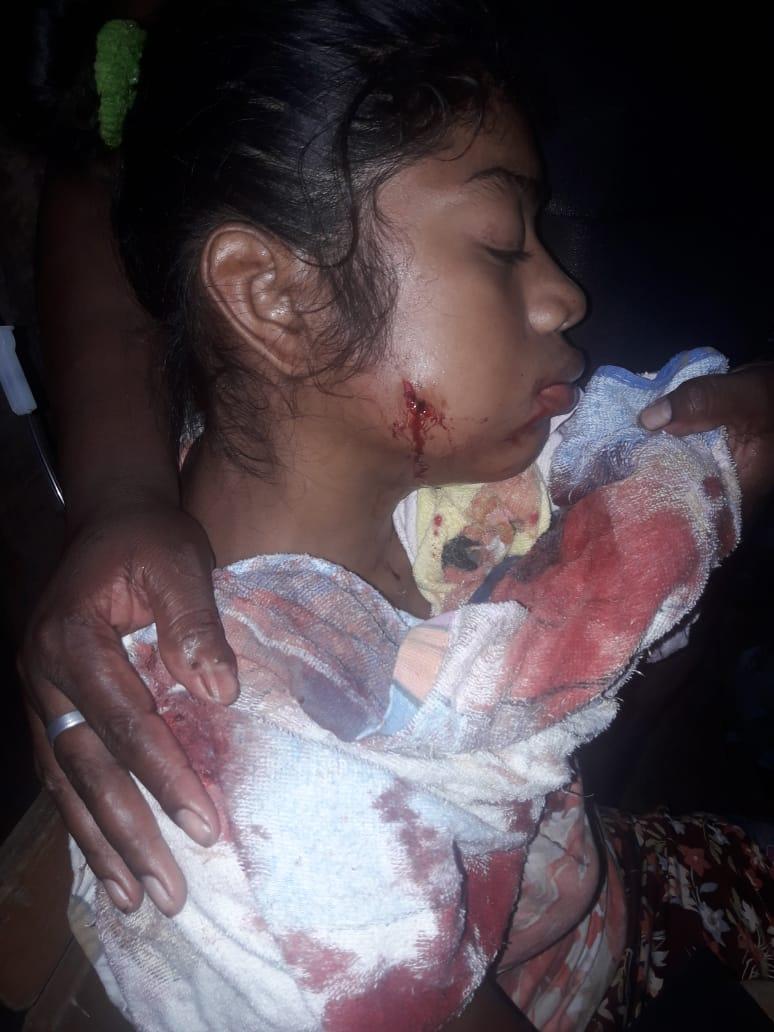 Adolescente de 14 años herida tras recibir un impacto de bala por colonos. Foto: Cortesía