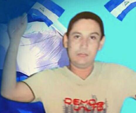 El preso político que al momento de su captura los oficiales orteguistas le safaron la mandíbula