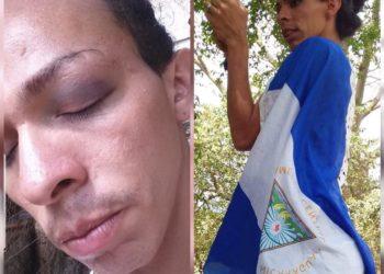 Lady La Vulgaraza denuncia agresión por simpatizantes orteguistas. Foto: Cortesía