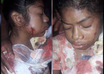 Adolescente de 14 años herida de bala tras nuevo ataque de colonos. Foto: Cortesía