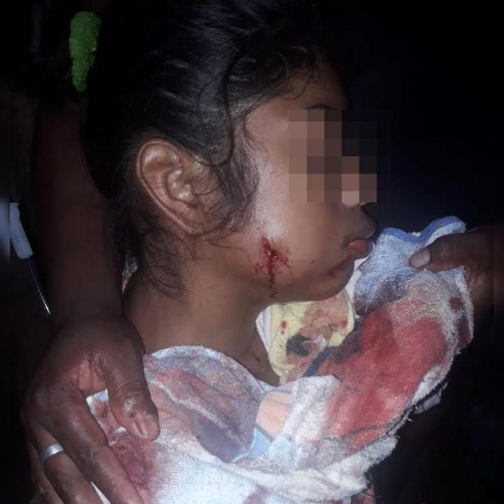 Adolescente de 14 años herida de bala tras nuevo ataque de colonos a la comunidad miskita. Foto: Cortesía