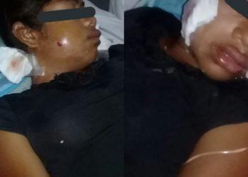 Urge trasladar a hospital de Managua a adolescente baleada por colonos. Foto: Cortesía