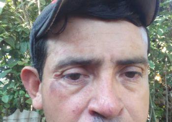 Así quedó el rostro de el excarcelado político Rubén Guido de Estelí. Foto: Cortesía / Artículo 66