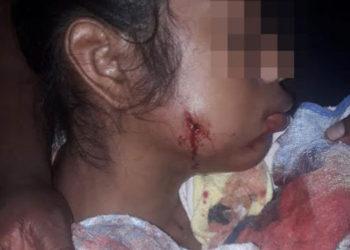 Adolescente recibió impacto de bala en su rostro tras ataque de colonos. Foto: Cortesía