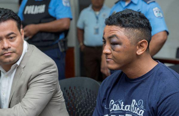 Cientos de nicaragüenses que fueron encarcelados denunciaron las torturas físicas de las que eran víctimas por parte de la guardias y paramilitares orteguistas. Foto: La Prensa