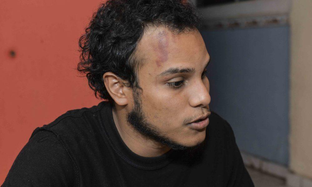 El periodista Hans Lawrence Ramírez fue embestido por una turba de fanáticos orteguistas. Foto: La Prensa