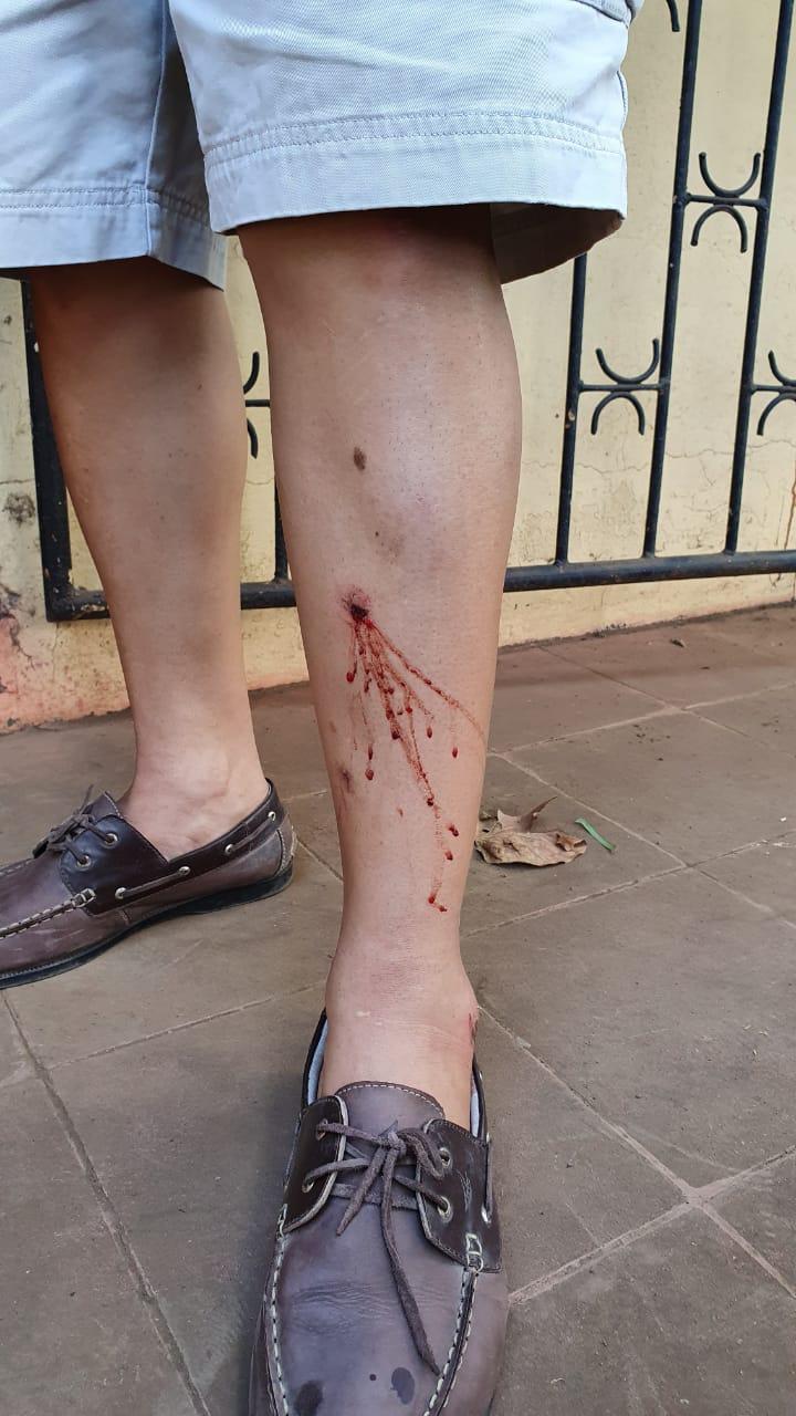 Exreo político Lenin Salablanca muestra las heridas provocadas por paramilitares cuando intentaron secuestrarlo. Foto: Á. Navarro/Artículo 66