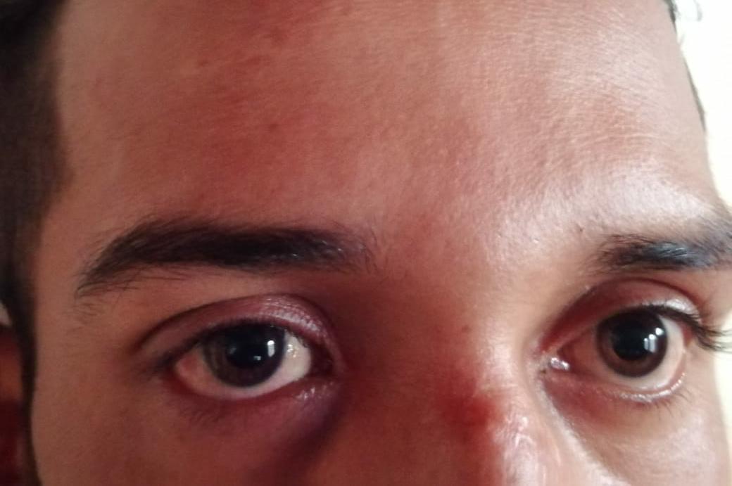 Juan Bosco Martínez, de 25 años de edad, la bala me desbarató todo el pómulo y el tabique nasal de la cara y me quedo en la garganta. Foto: Artículo 66