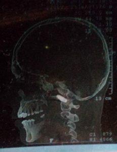 La bala que le entró pómulo y el tabique nasal le quedó alojada en la garganta. Foto: Artículo 66