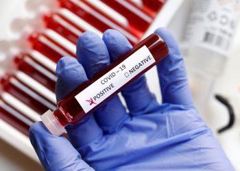 Algunas de las pruebas rápidas para detectar el coronavirus. Foto: Reuters
