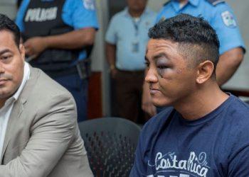 Nicaragua, en lista negra por usar la tortura para silenciar a las voces disidentes