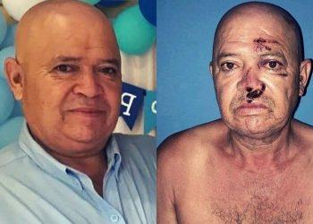 Golpean, secuestran y amenazan a opositor en Matagalpa